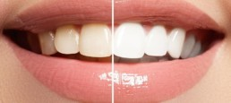 Teeth Whitening Dental Clinic in Istanbul Turkey